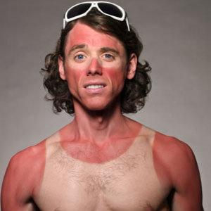 sunburn-medium_new