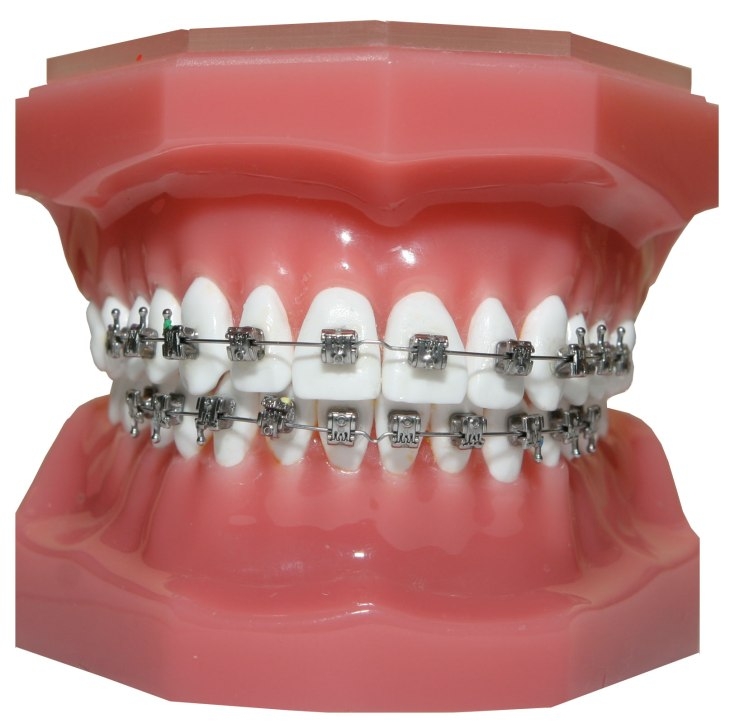 std-metal_braces